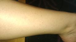 skóra po użyciu starego depilatora