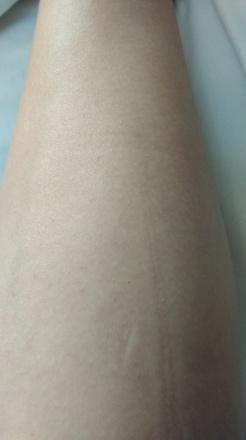 skóra po użyciu Braun Silk-épil 5